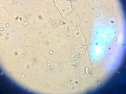 293人胚肾细胞
